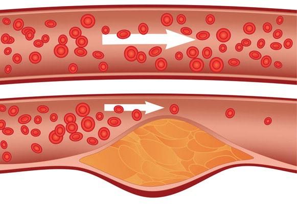 Высокий холестерин приводит к образованию бляшек на стеках сосудов